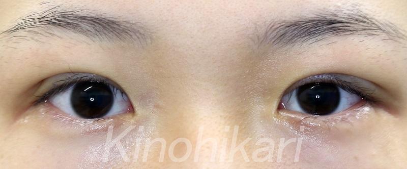 【二重埋没法】自然な末広型で目を大きく 10代女性【症例No.29Y0000166】