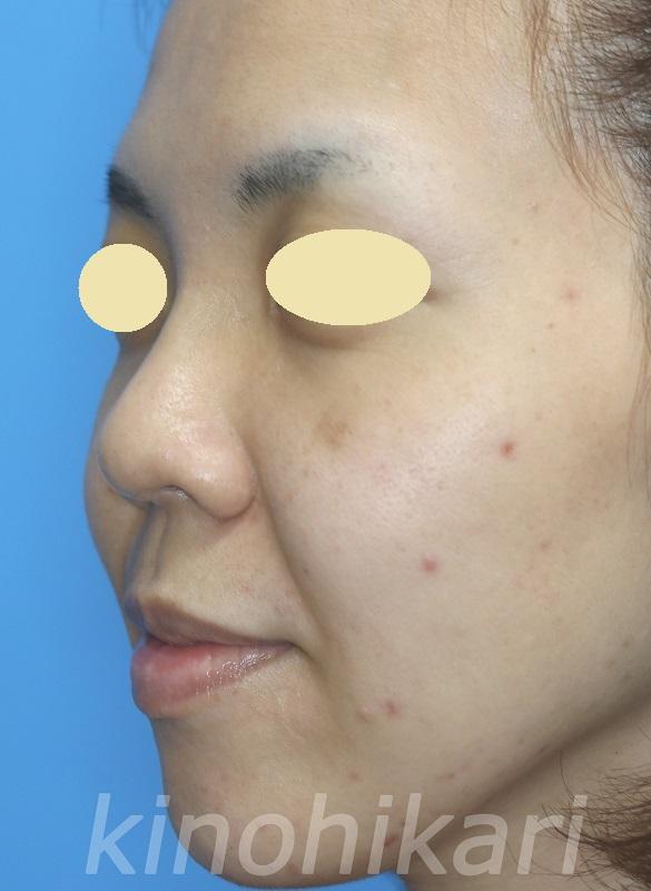 【隆鼻術】ヒアルロン酸でお手軽に 30代女性【症例No.29Y0000216】