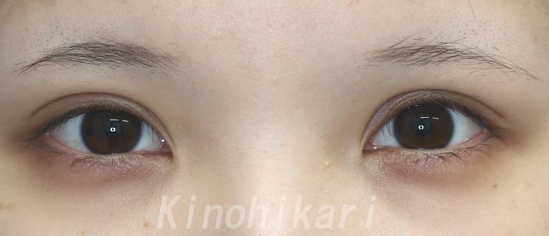 【眼瞼下垂】目力のある平行二重に 20代女性【症例No.29Y0000240】