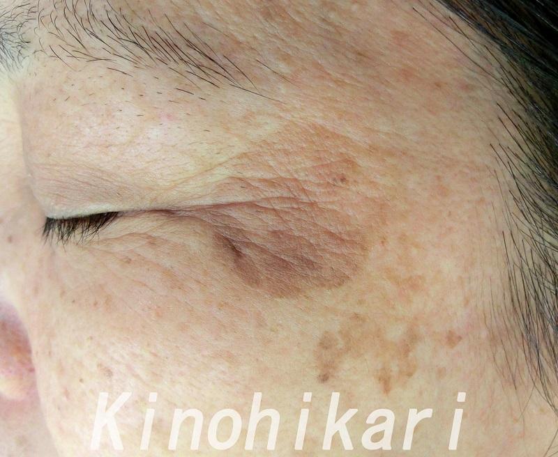 【シミ取りレーザー】左頬の大きなシミに 60代女性【症例No.29Y0000169】