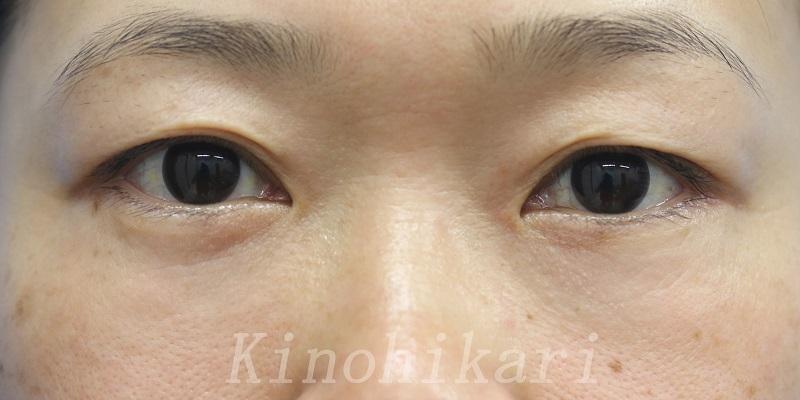 【経皮的ハムラ】目の下のクマ・くぼみを改善 30代女性【症例No.29Y0000204】