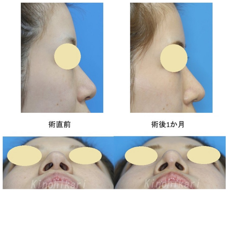 【鼻尖縮小+耳介軟骨移植】クローズ法でだんご鼻改善 20代女性【症例No.29Y0000184】