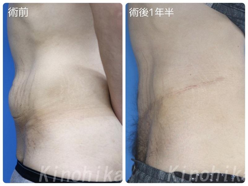 【皮膚切除】ダイエット後の腹部のたるみを切除 30代男性【症例No.29Y0000195】