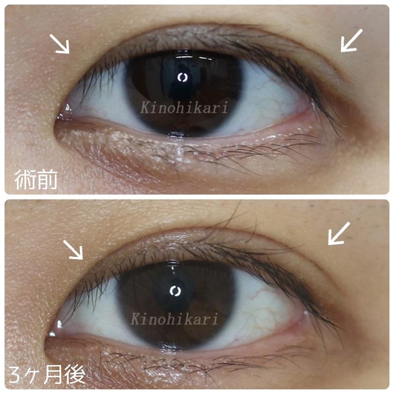 【他院修正】眼瞼下垂手術後の目の開き具合を和らげたい 20代女性【症例No.29Y0000202】