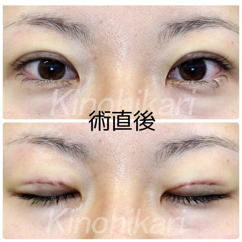 【二重埋没法】綺麗な瞳が見えるように 20代女性【症例No.29Y0000207】
