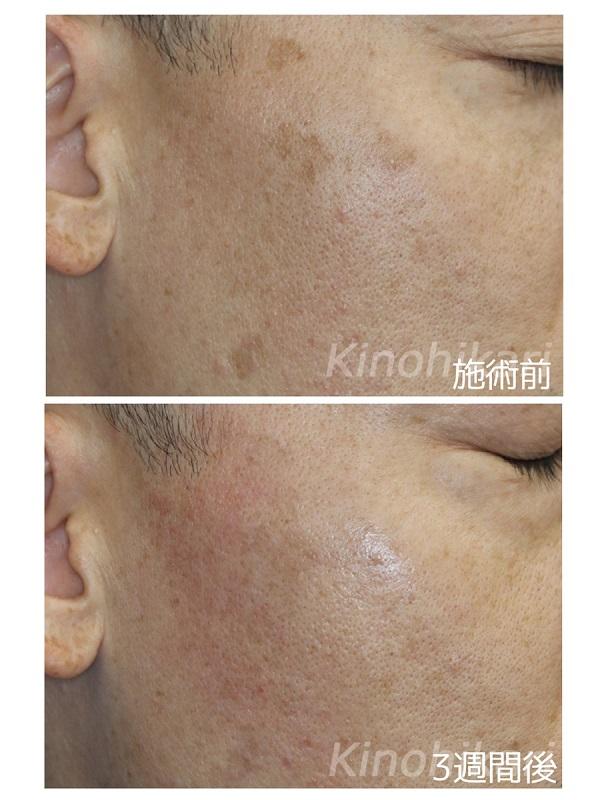 【5分間シミ取り放題】両頬のシミ取り 40代男性【症例No.29Y0000213】