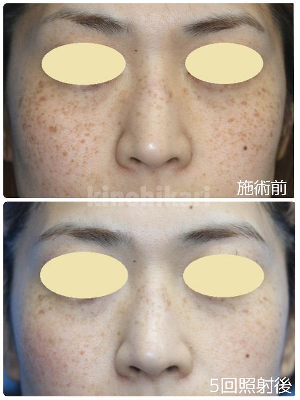 【ライムライト】顔全体のそばかす改善 30代女性【症例No.29Y0000226】