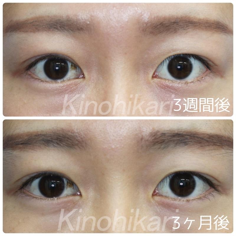 【眼瞼下垂】右眼の先天性眼瞼下垂 20代女性【症例No.29Y0000237】
