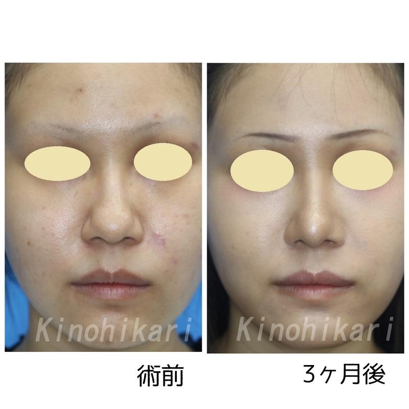 【鼻尖・耳介軟骨移植】オープン法でだんご鼻改善 20代女性【症例No.29Y0000238】