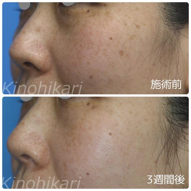 【5分間シミ取り放題】小さな色素斑を改善 40代女性【症例No.29H0000241】