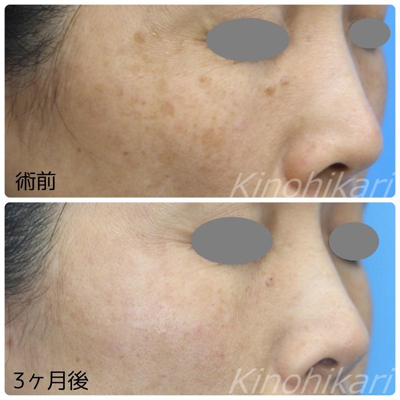 【5分間シミ取り放題】濃くなってきた両頬のシミ 40代女性【症例No.29Y0000245】