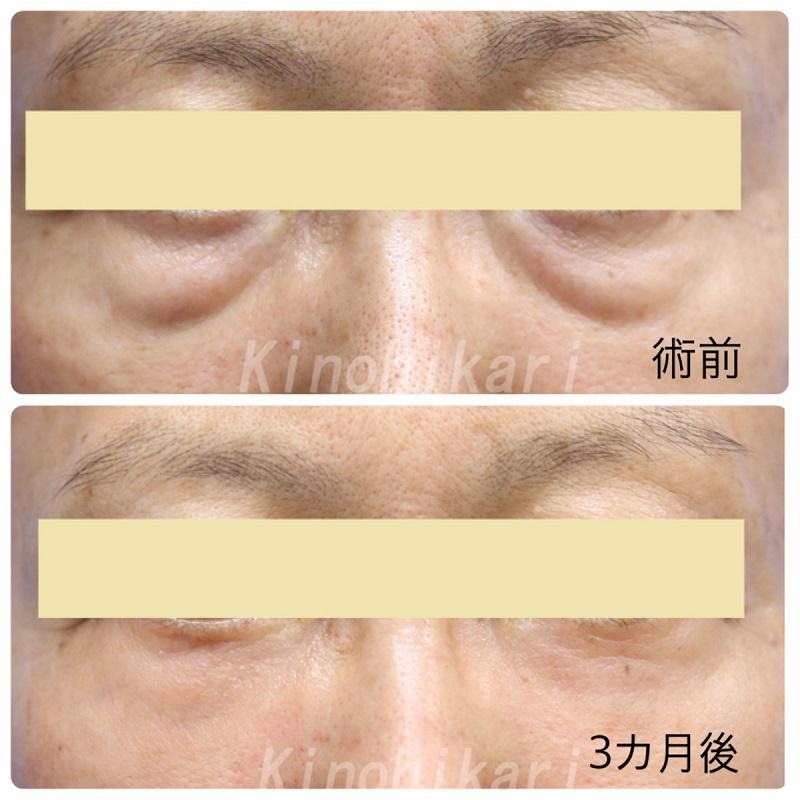 【ハムラ法】経皮的ハムラでタルミ改善 60代女性【症例No.29Y0000171】