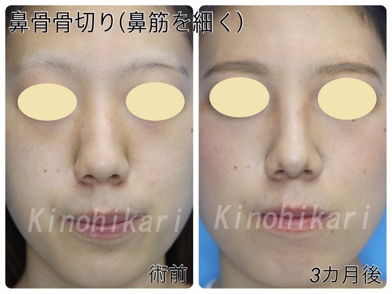 【鼻骨骨切り】鼻筋を細く 20代女性【症例No.29Y0000175】