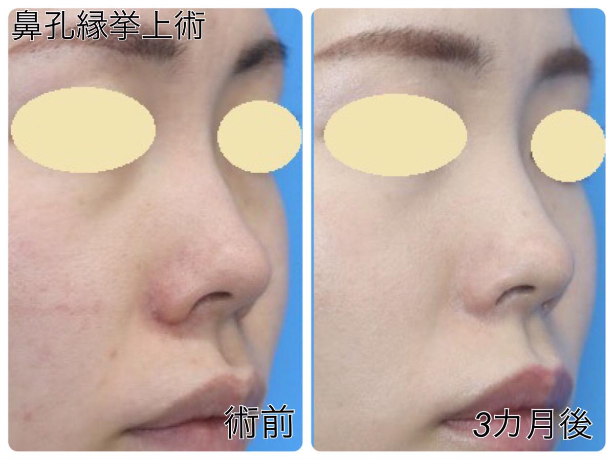 【鼻孔縁挙上術】垂れ下がった鼻の穴の改善 20代女性【症例No.29Y0000182】