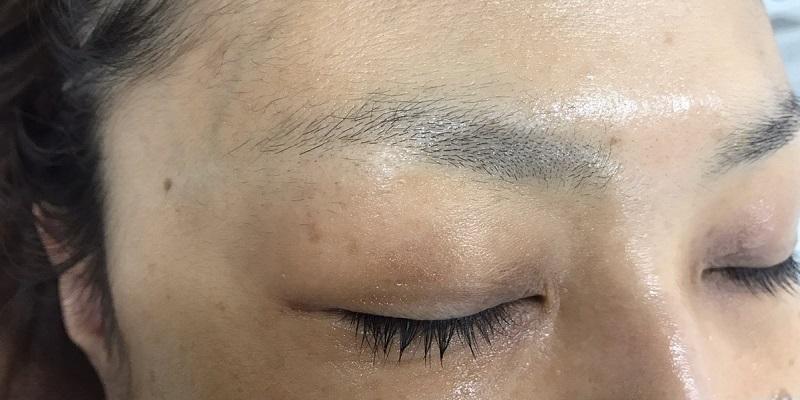 【眉アートメイク】4D眉で自然な毛並みを 40代女性【症例No.29A0000187】