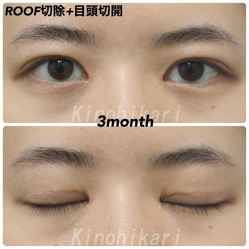 【目頭切開+ROOF切除】蒙古ひだの張りが強く瞼の厚い症例 10代女性【症例No.29Y0000349】