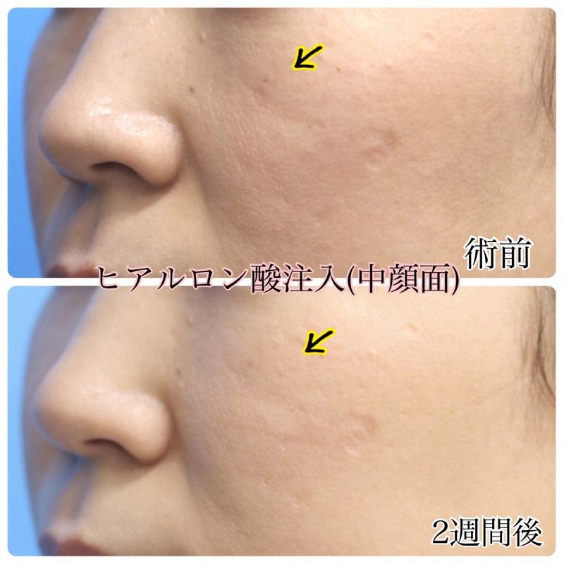 【ヒアルロン酸】ゴルゴ線の改善 30代女性【症例No.29Y0000162】