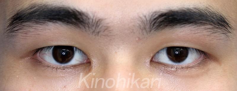 【目頭切開】目と目の距離が近い方の目頭切開 20代男性【症例No.29Y0000198】
