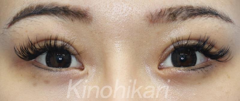 【眼瞼下垂】広めの幅でも馴染むように 20代女性【症例No.29Y0000239】