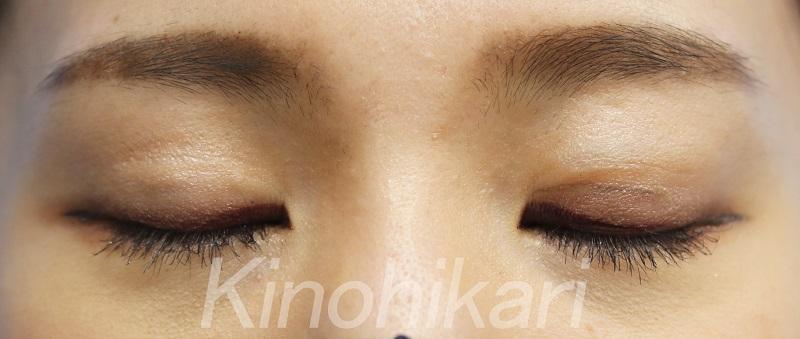 【目の上のくぼみ】二重切開後のくぼみをヒアルロン酸で改善 20代女性【症例No.29Y0000214】