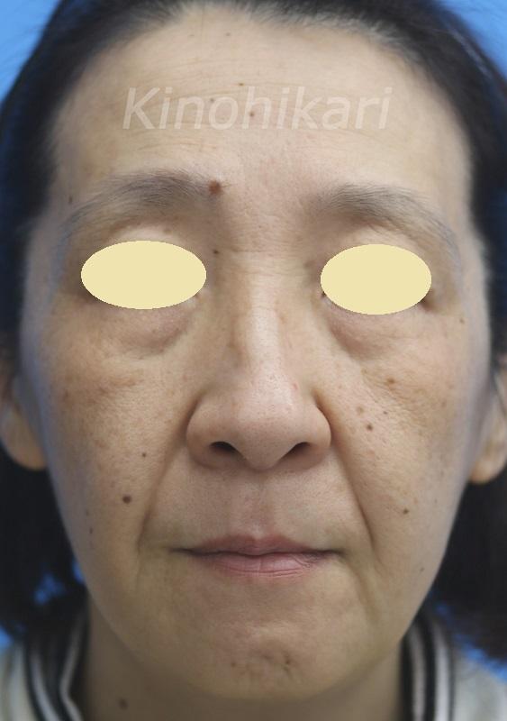 【スレッドリフト】ヒアルロン酸、ボトックスとの併用でタルミしわ改善 50代女性【症例No.29Y0000212】