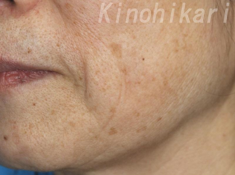 【Qスイッチルビー】頬下のまばらなシミ取り 60代女性【症例No.29Y0000229】