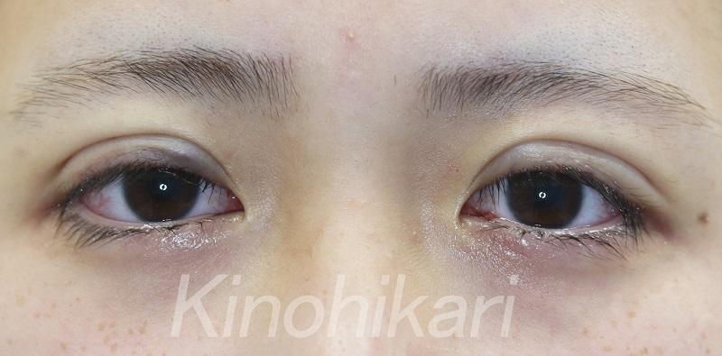 【二重埋没法】たれ目を活かして大人っぽく 10代女性【症例No.29Y0000249】