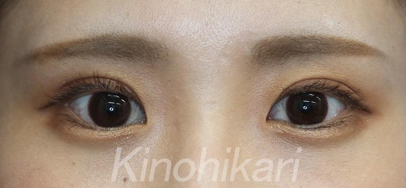 【二重埋没法】大きな瞳を活かした二重に 20代女性【症例No.29H0000264】