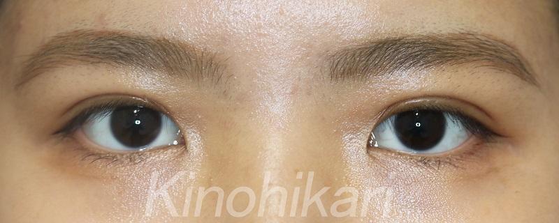 【二重埋没法】アーモンド形のアーチに 10代女性【症例No.29Y0000309】