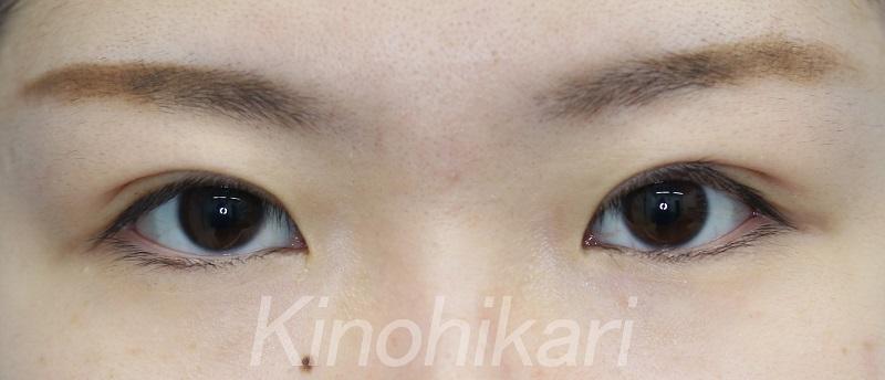 【二重埋没法】余剰皮膚の被りを改善 20代女性【症例No.29H0000254】
