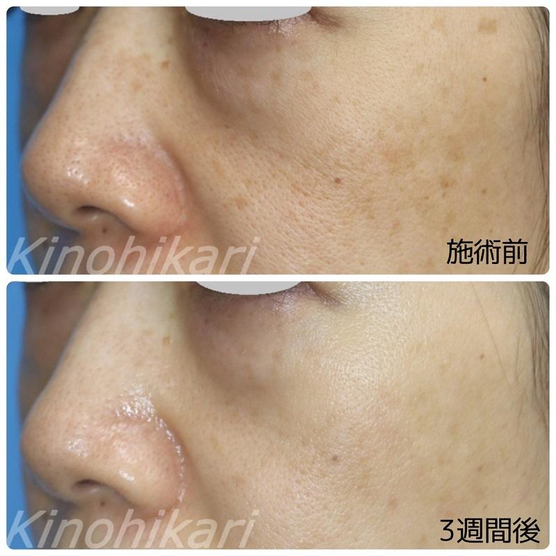 【5分間シミ取り放題】両頬のシミ取り 40代女性【症例No.29H0000262】