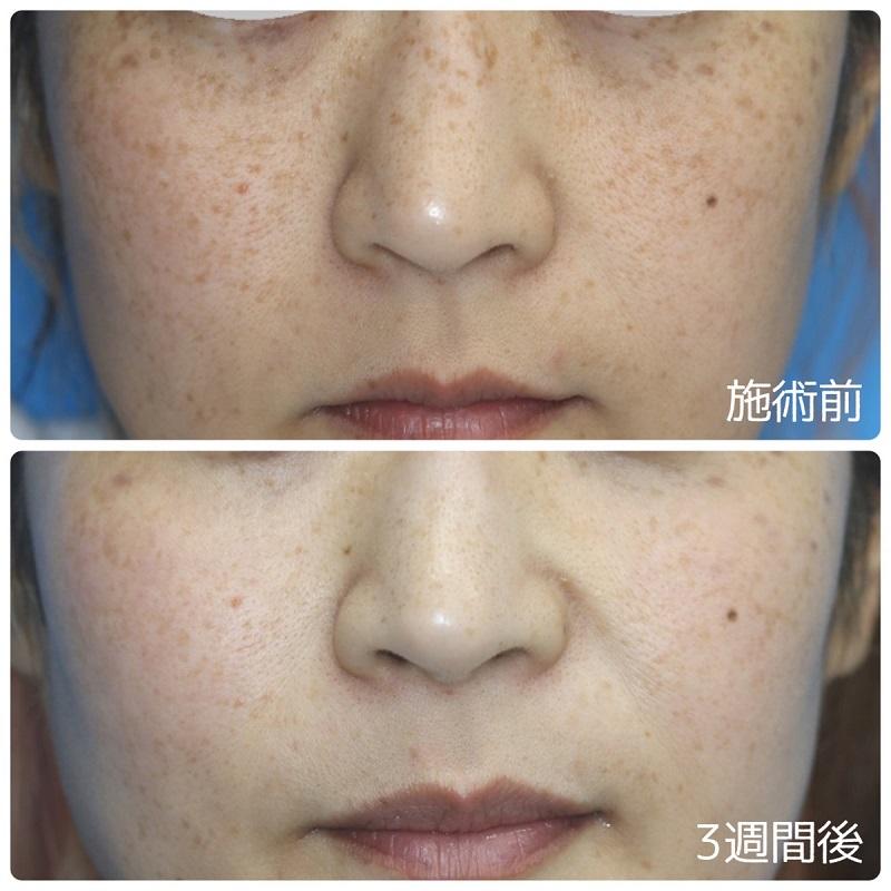 【5分間シミ取り放題】茶褐色斑の改善 30代女性【症例No.29Y0000260】