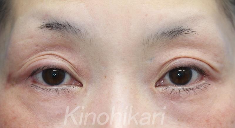【たれ目+目尻切開】吊り目かつ極端に目尻側の目が小さい 40代女性【症例No.29Y0000246】
