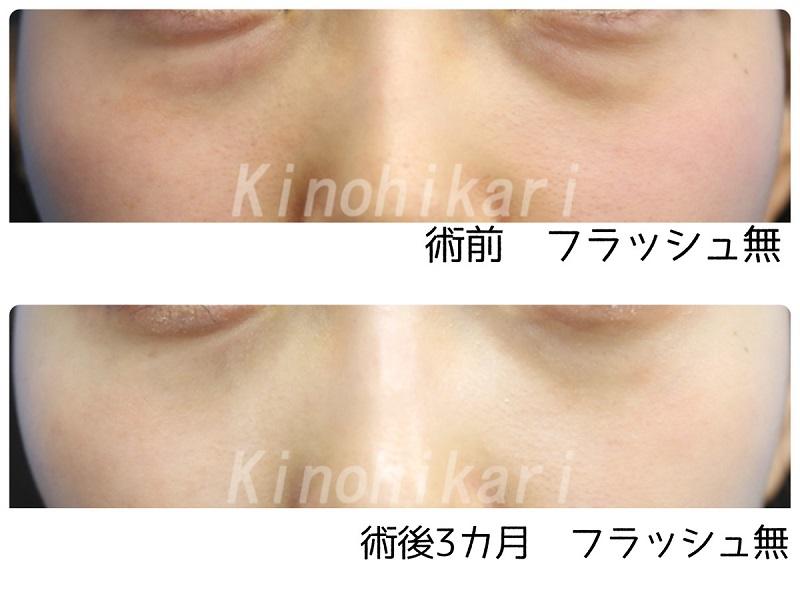 【目の下脱脂】若いのに目の下のクマが目立つ20代女性【症例No.29Y0000273】