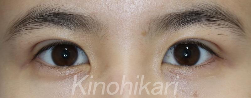 【二重埋没法】余剰皮膚を解消し、丸みの際立つ可愛らしい目に 10代女性【症例No.29Y0000281】
