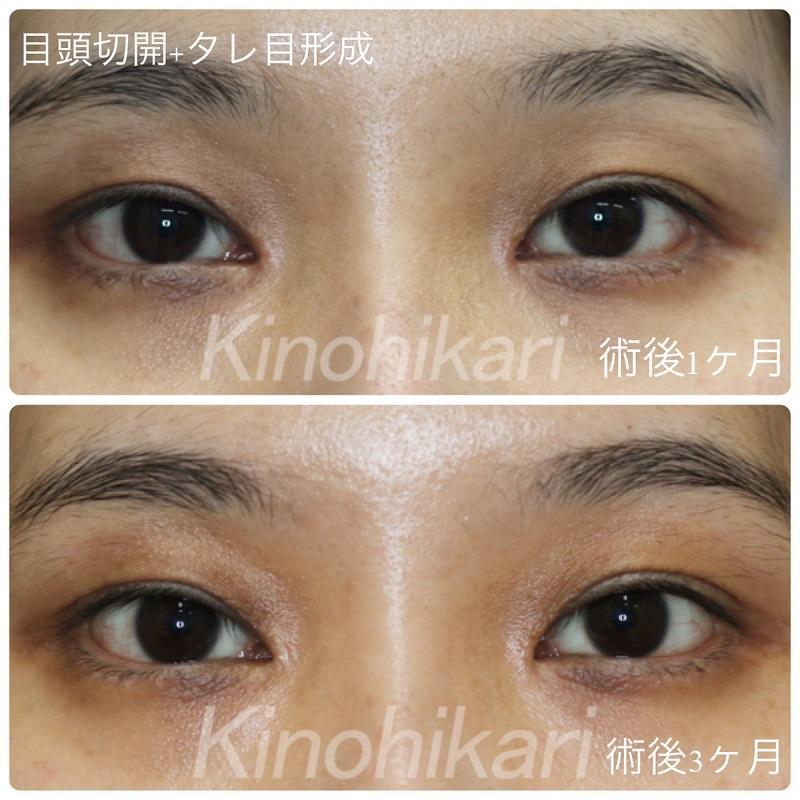 【たれ目+目頭切開】離れ目とつり目を改善したい 20代女性【症例No.29Y0000283】