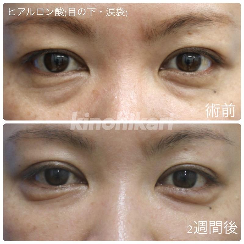 【ヒアルロン酸】クマ解消と涙袋作成 30代女性【症例No.29H0000277】