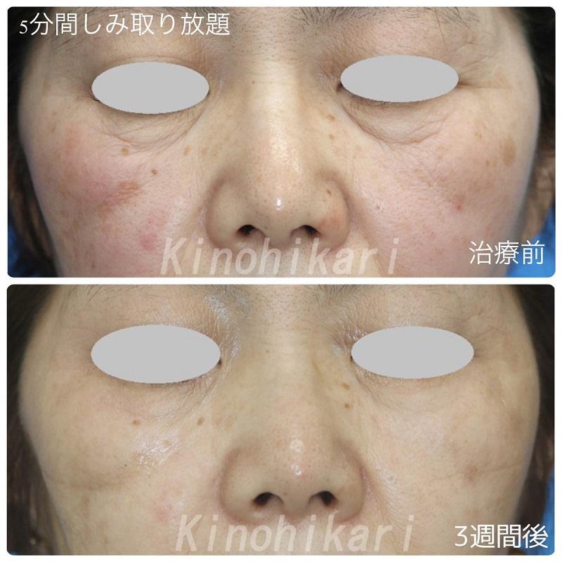 【5分間シミ取り放題】両頬のシミ 60代女性【症例No.29H0000290】