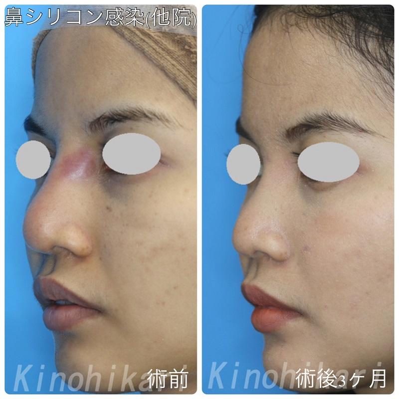 【他院修正】海外で挿入した鼻シリコンの感染 20代女性【症例No29Y0000291】
