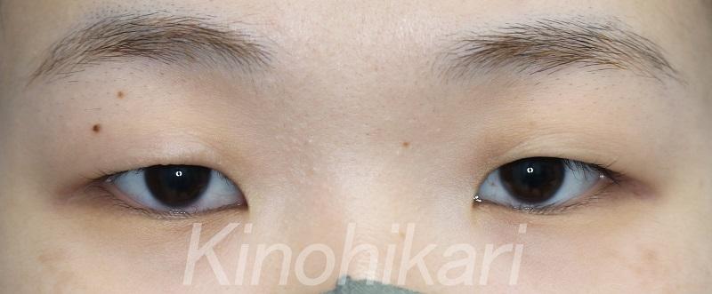 【二重埋没法】余剰皮膚により目が細く見える 20女性【症例No.29H0000329】