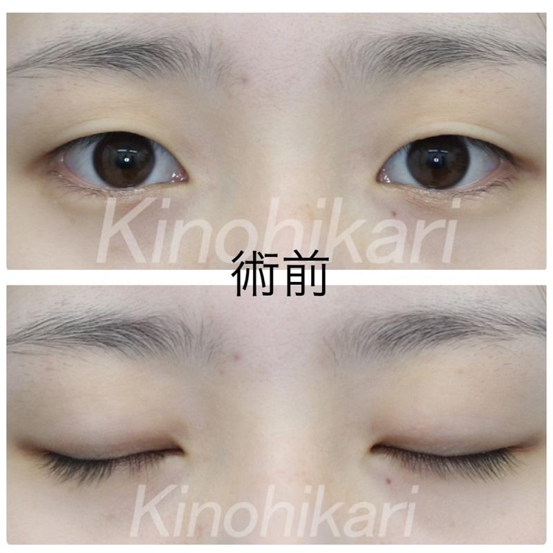 【二重埋没法】余剰皮膚の被さりを改善し平行二重に 10代女性【症例No.29H0000303】