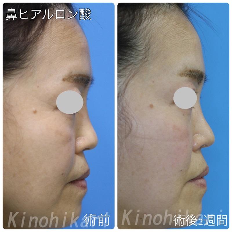 【隆鼻術】横顔のバランスに合うように 40代女性【症例No.29H0000326】