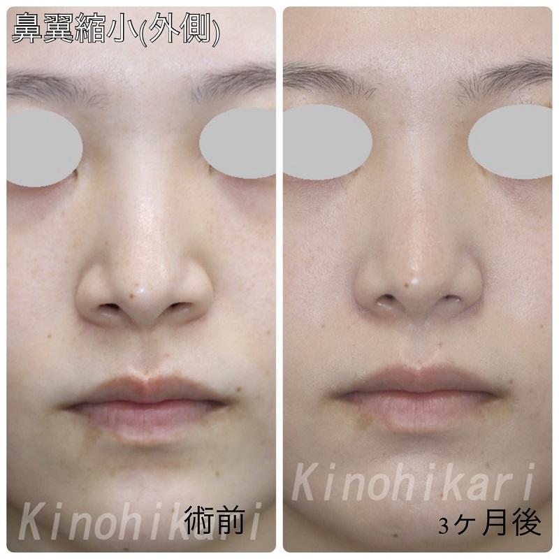 【鼻翼縮小】小鼻の丸みの自己主張を減らしたい 20代女性【症例No.29Y0000301】