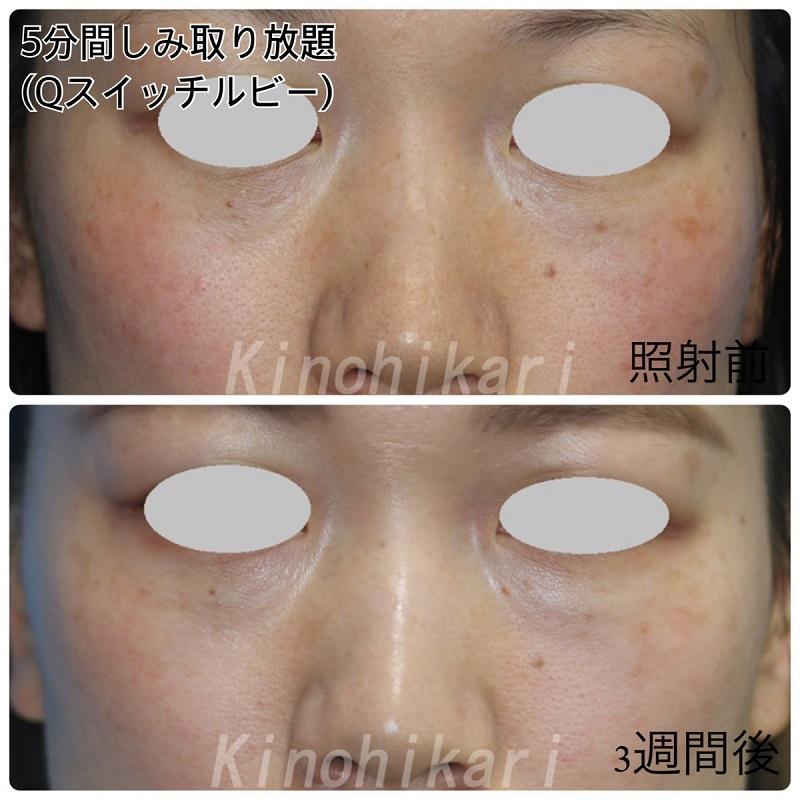【5分間シミ取り放題】左頬・上眼瞼横の目立つシミに 30代女性【症例No.29H0000296】