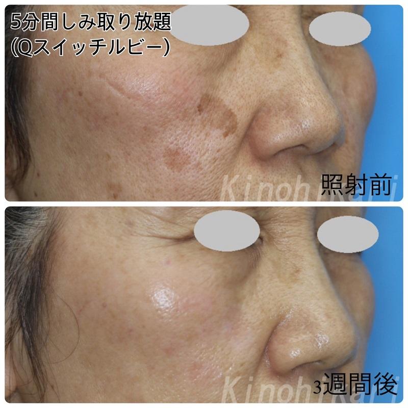 【5分間シミ取り放題】両頬のハッキリとしたシミに 50代女性【症例No.29H0000298】