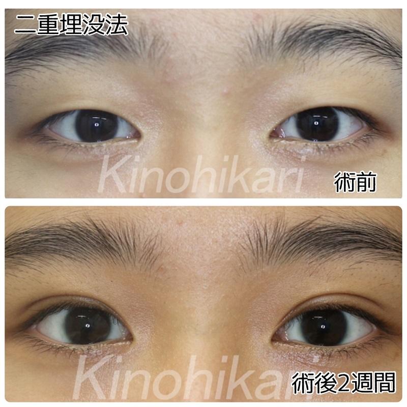 【二重埋没法】横長の目を際立てる平行二重に 10代女性【症例No.29Y0000320】
