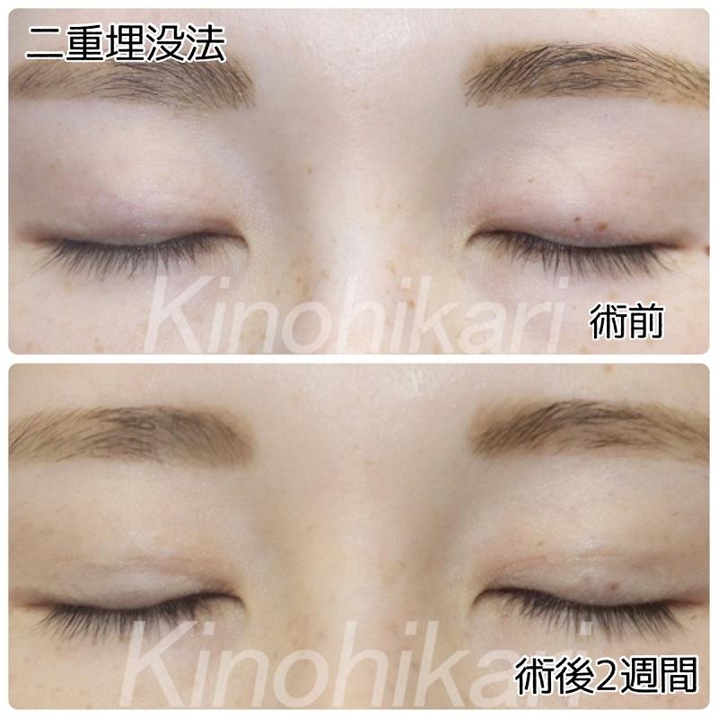 【二重埋没法】瞳が際立つ大人っぽい目元へ 30代女性【症例No.29Y0000322】