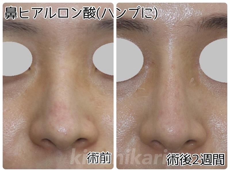 【わし鼻修正】ヒアルロン酸で鼻をまっすぐに 20代女性【症例No.29Y0000328】