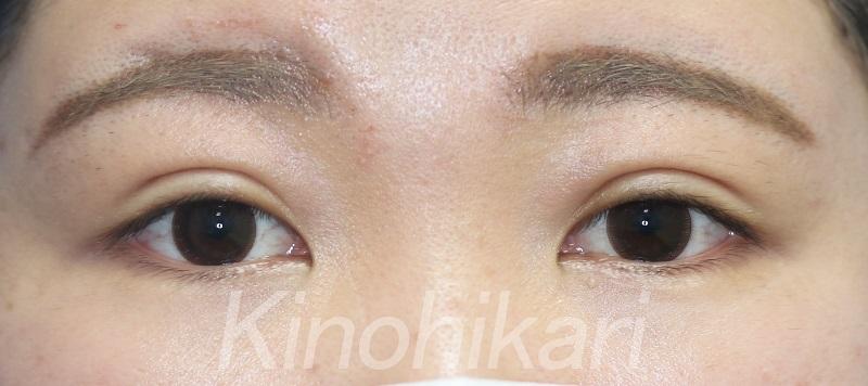 【二重埋没法】厚めの瞼の平行二重 20代女性【症例No.29Y0000340】