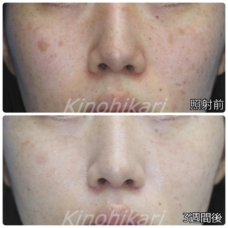 【5分間シミ取り放題】両頬、顔全体の薄いシミ 20代女性【症例No.29H0000333】